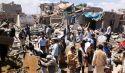 الحرب على اليمن تتسبب في كارثة إنسانية فوق كارثة الحرب المنسية